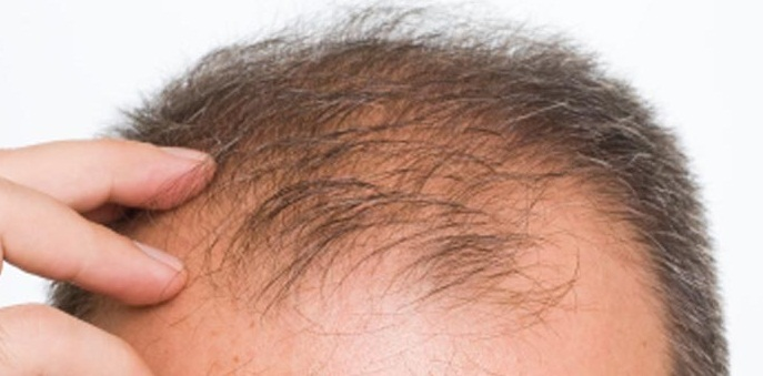 Hair loss is a commonly occurring problem with saturated treatment ...